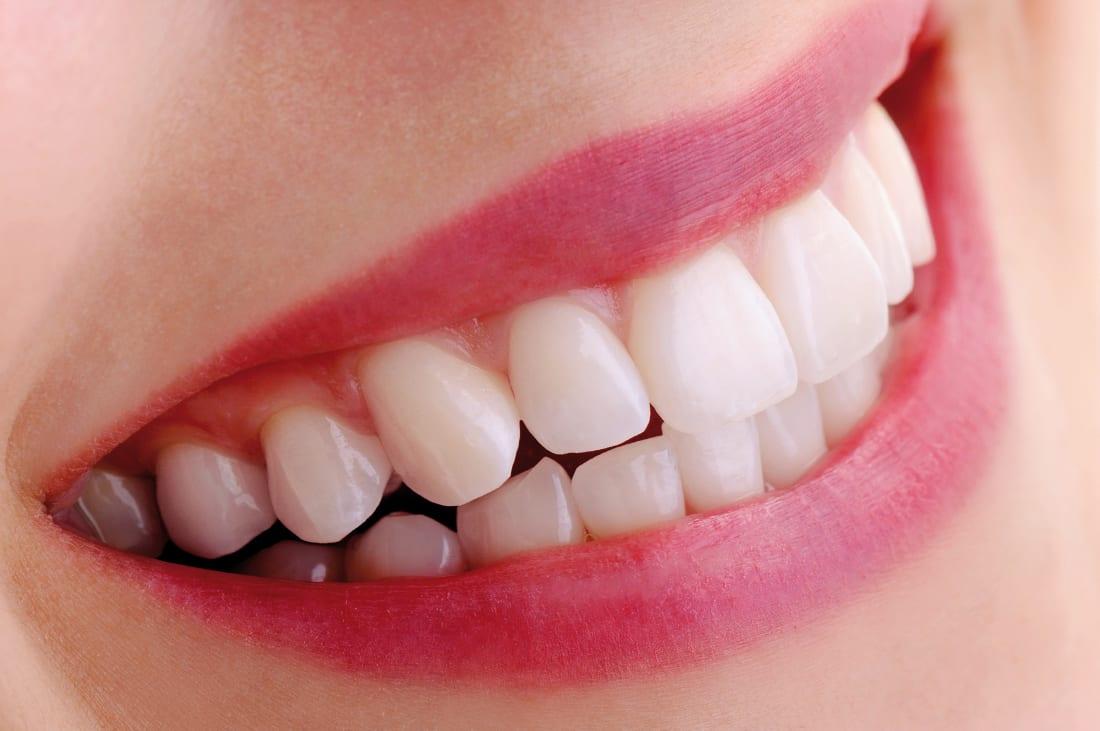 Exija siempre implantes dentales de calidad porque no todos son iguales.